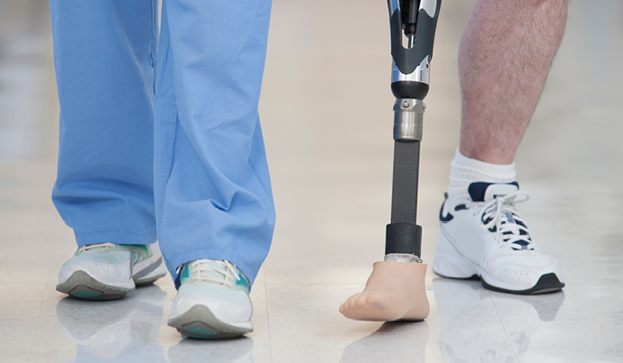 man walking with a prosthetic leg