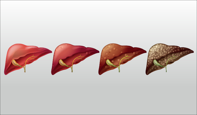 liver disease stages graphic