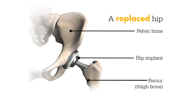 hip replacement graphic