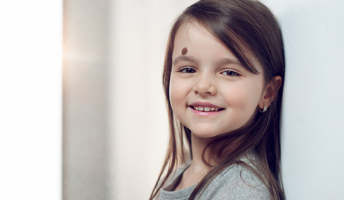 little girl with birthmark on her forehead